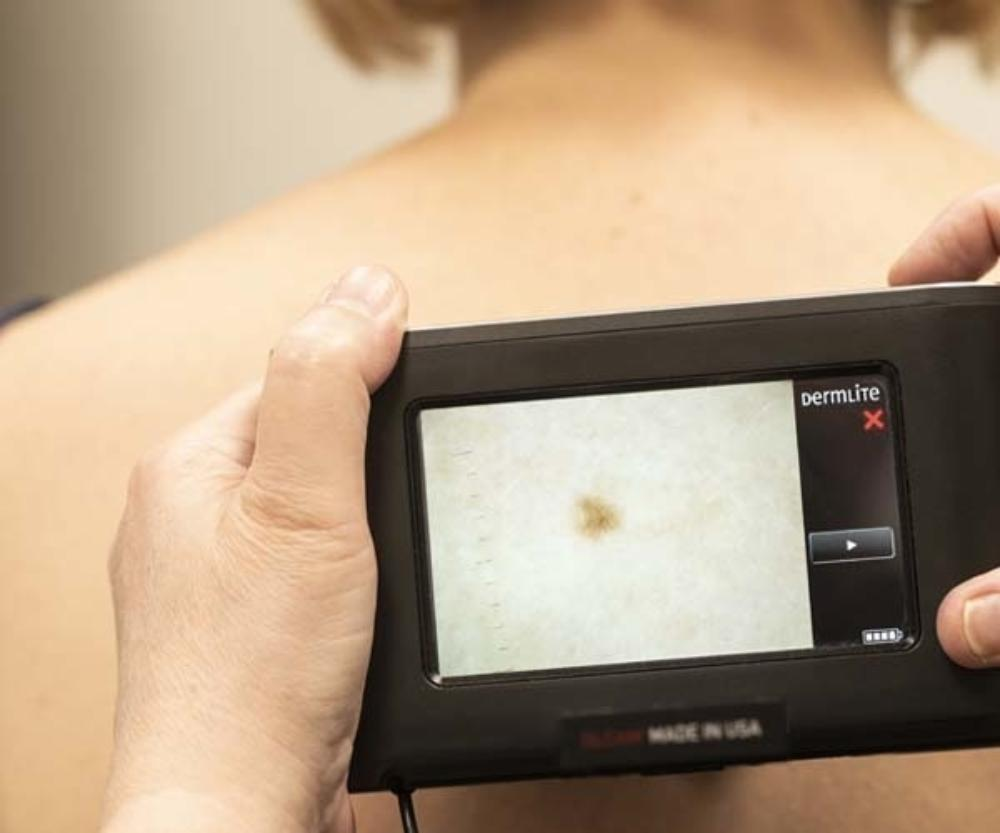 Gore Skin Cancer Check Mole Check Thumb