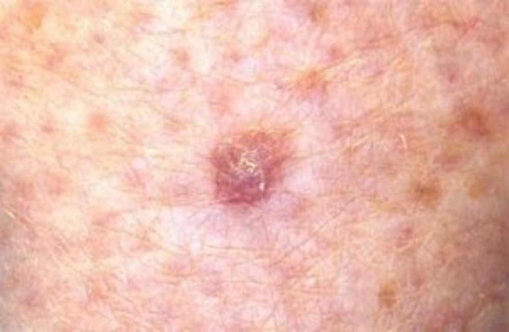Types of skin cancer | MoleMap NZ Official Site